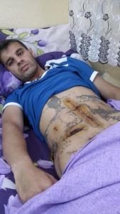 Isa Encü, shot in the stomach by the army when he confronted them about closure of smuggle routes and pastures in Roboski. The wound got infected and they had to open him to clean it up. July 2015. Photo: Fréderike Geerdink